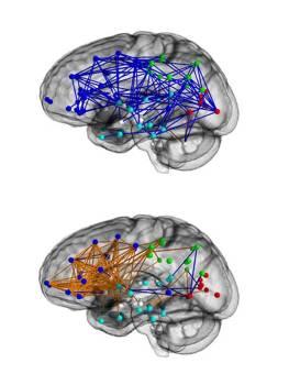 Male: Female Brain